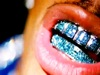Grillz (feat. Paul Wall & Ali & Gipp) by Nelly featuring Paul Wall, Ali & Gipp music video